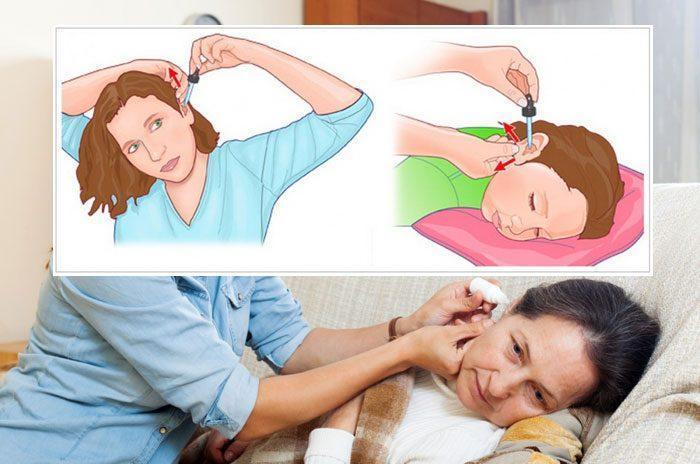 Способы закапывания ушей