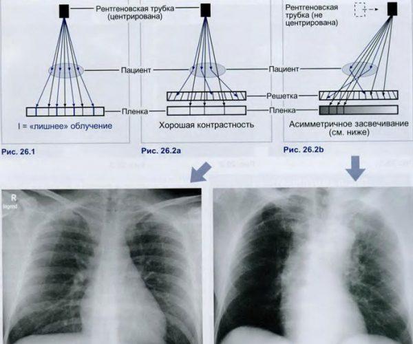 Сравнение рентгена и флюорографии