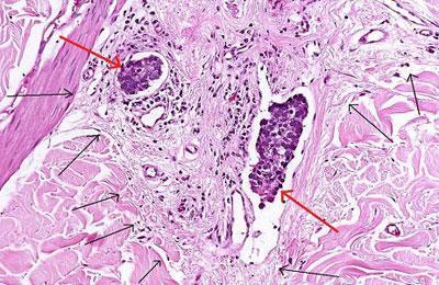 Метастазы под микроскопом